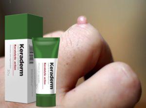 Keraderm крем, съставки, как да нанесете, как работи, странични ефекти